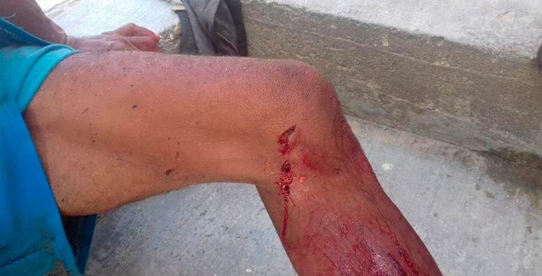 Atacó cocodrilo a campesino en la Costa