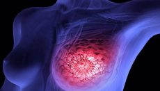 Crean App para detectar cáncer de mama