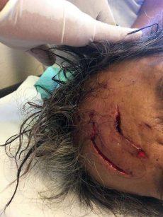 Ataca cocodrilo a hombre en la Costa de Oaxaca