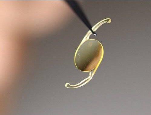 Con técnica quirúrgica especialistas del IMSS implantan lente intraocular para atender cataratas