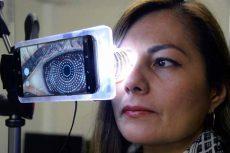 Desarrolla UNAM un topógrafo con cámara de celular para evaluar la forma de la córnea