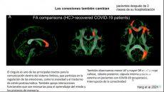 Tras padecer Covid-19, pacientes podrían desarrollar afectaciones al cerebro